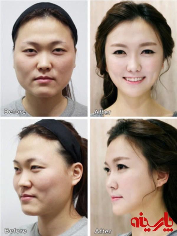 عمل زیبایی صورت