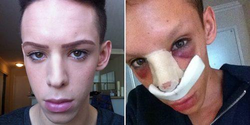 ۱۱۰ عمل جراحی برای فرار از جنسیت+تصاویر