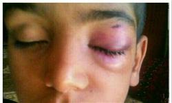 تنبیه بدنی دانشآموز را روانه بیمارستان کرد+تصویر