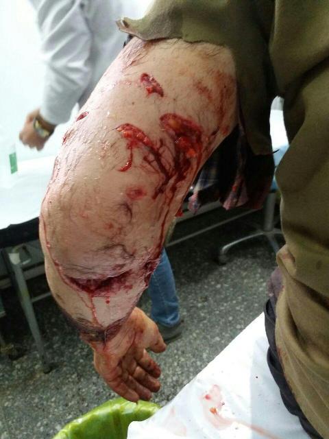 حمله خونین پلنگ به مرد زنجانی