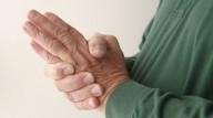هفت درمان طبیعی برای تسکین آرتریت