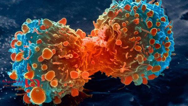 رازهای  پیشگیری از یک سرطان شایع