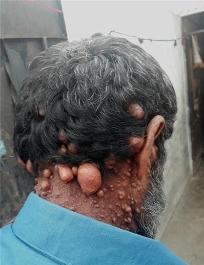 بیماری عجیب مرد حبابی