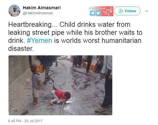 عکس تکان دهنده از وضعیت کودکان درمانده یمن