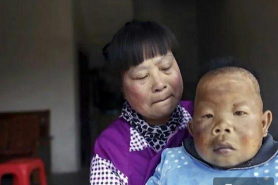 بیماری عجیب مرد چینی+ عکس