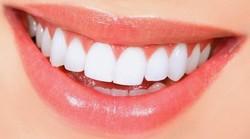 روشهای مختلف اصلاح طرح لبخند و معایب آنها