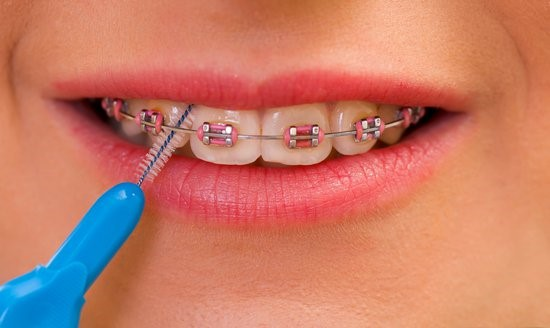 روشهای مختلف اصلاح طرح لبخند و مزایا و معایب هر کدام