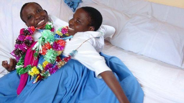 درگذشت دو قلوهای به هم چسبیده تانزانیایی پس از ۲۲ سال