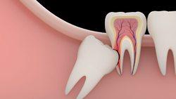 مشکلات نکشیدن دندان عقل