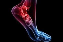 دردهای ناشی از آرتریت را به روشهای طبیعی درمان کنید