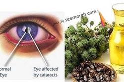 بهبود بینایی و درمان آب مروارید با روغنی گیاهی
