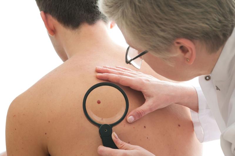 عامل سرطان پوست را بشناسید
