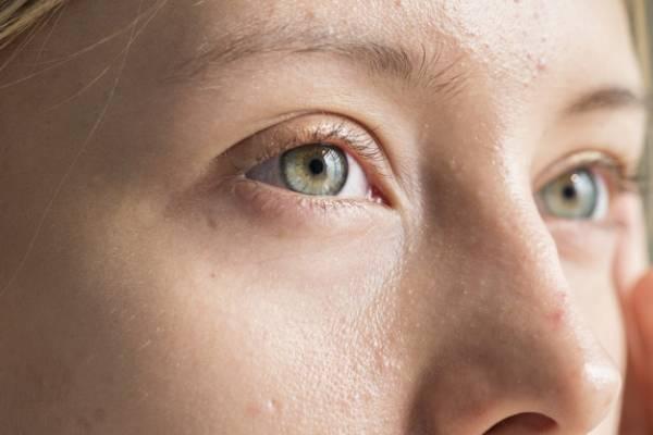 لنز چشم مناسب رنگ پوستهای سبزه و روشن