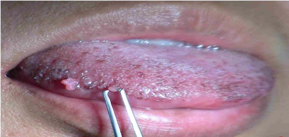 علائم سرطان زبان چیست؟