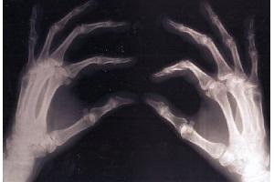 پوکی استخوان این بار به علت کم خوابی