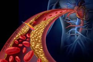 رژیم غذایی برای کاهش تری گلیسرید