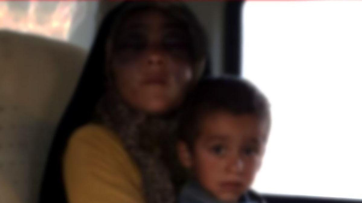 شکنجه زن ۲۲ ساله رودباری توسط شوهر ۸۰ ساله/ بدنش پر از سوختگی سیخ داغ است + عکس