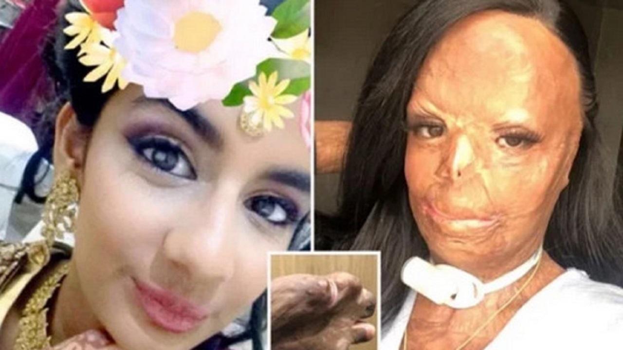 شامپویی که باعث از بین رفتن صورت یک دختر شد + عکس