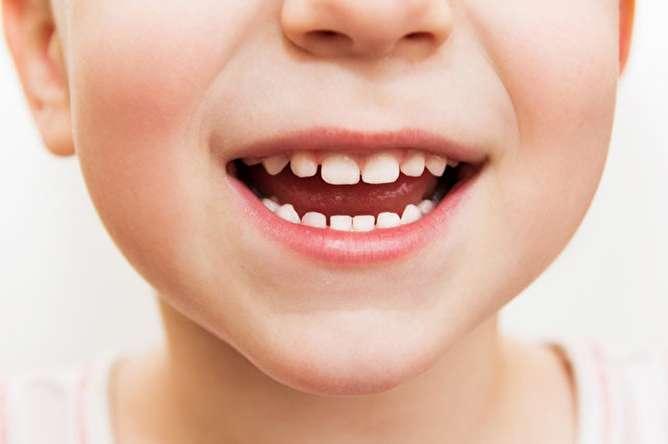 دندان عقل چه زمانی باید کشیده شود؟